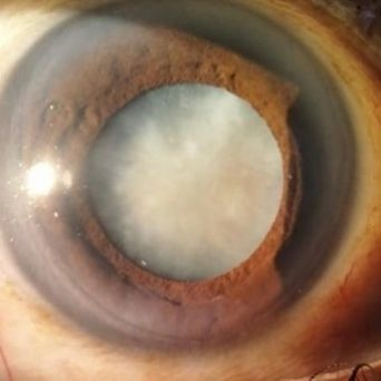 Adult Cataract Surgery