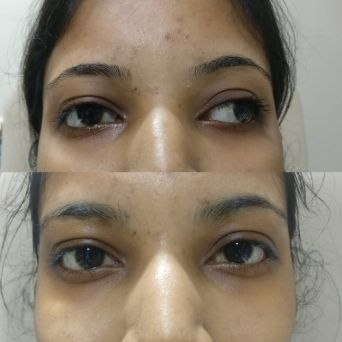 Squint before and after surgery